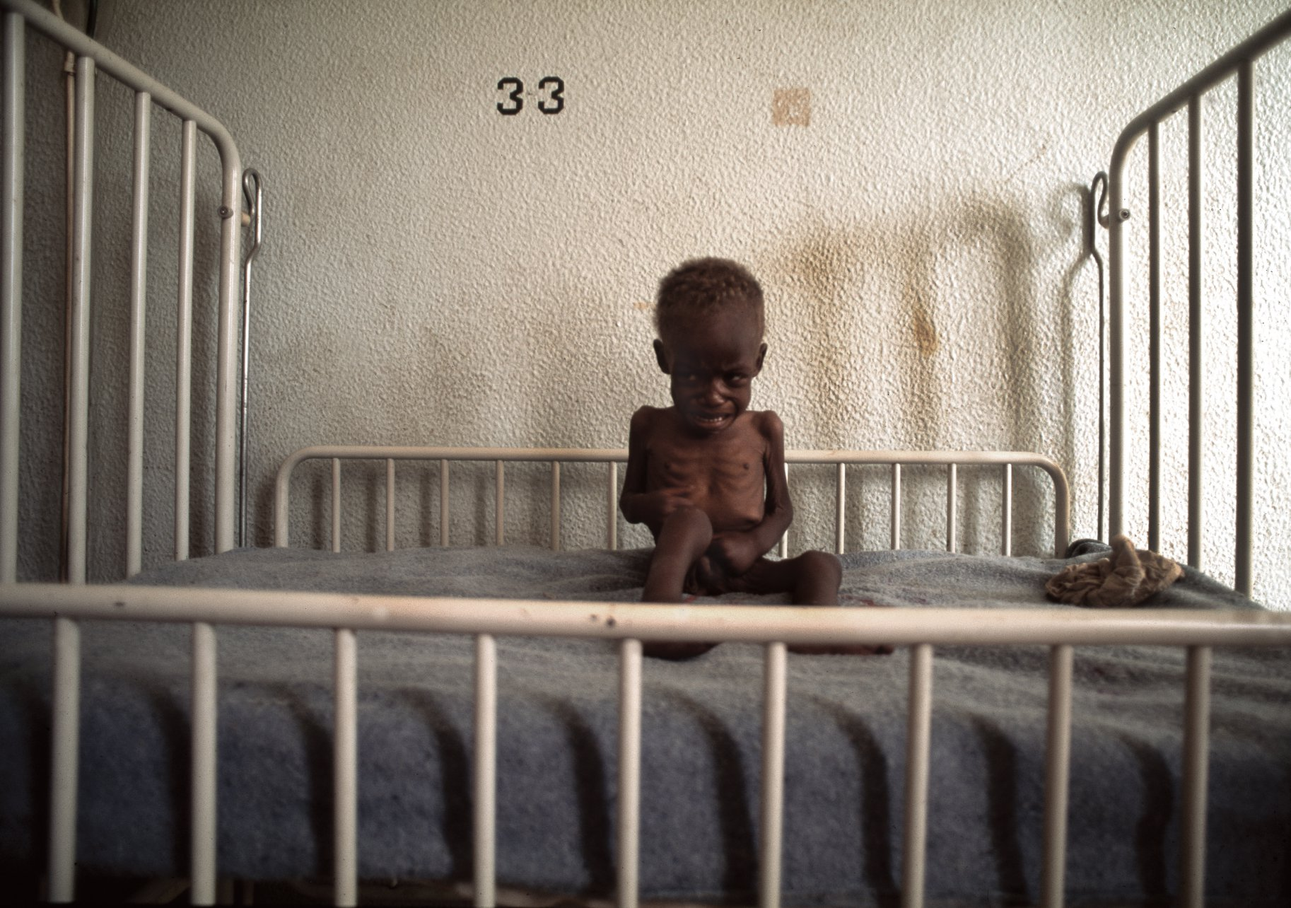 A starving child hangs on to a thread of life during Angola's long-running civil war. Quito, 1993