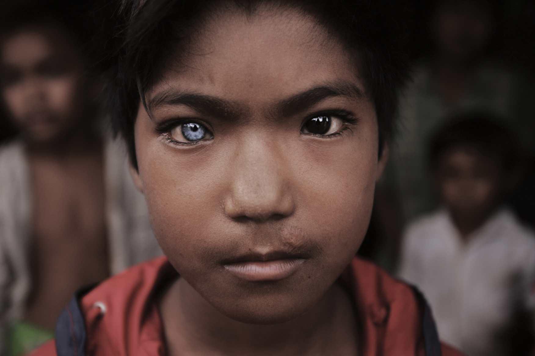 Blue Eyed, Brown Eyed Boy. Cambodia-Thai border. 2008