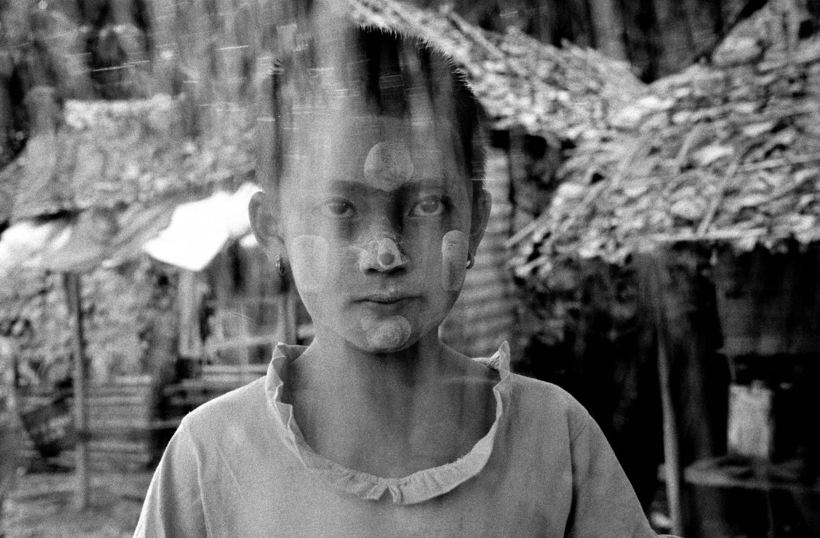 Malnourished. Mae Sot, Thailand. 2001