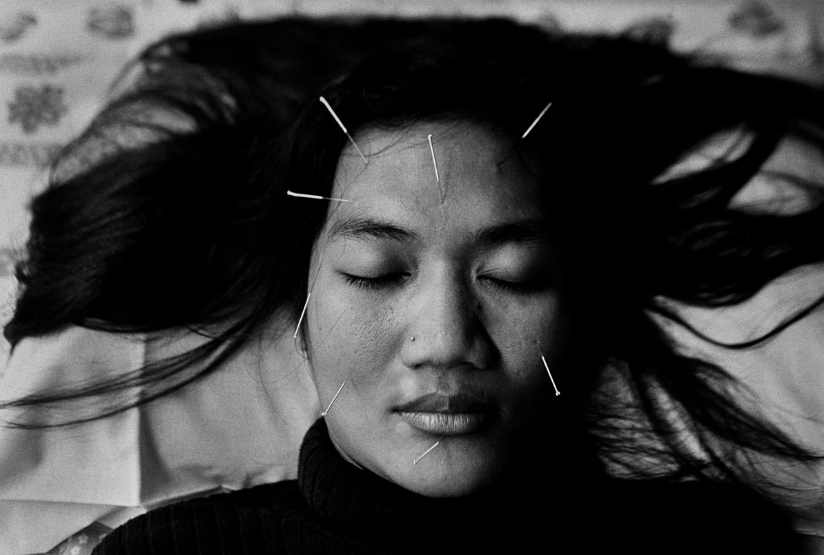 """""""Needles"""" Therapy for HIV. Yogyakarta, Indonesia. The mid-2000s."""