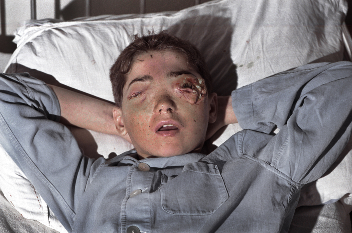 """Sead Bekric in a hospital in Tuzla, Bosnia-Herzegovina, after Serb fire blinded him in the Muslim held enclave of Srebrenica. 1993  The surgeon who operated on Sead Bekric ripped the bandages from his face and said, """"Photograph this and show the world what the bastards have done""""!"""