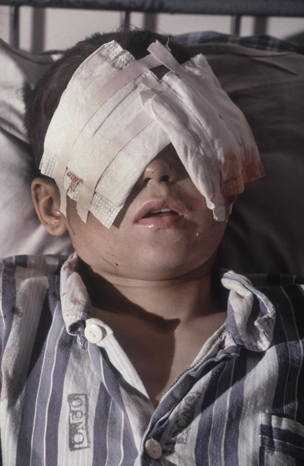 Sead Bekric in a hospital in Tuzla, Bosnia-Herzegovina, after Serb fire blinded him in the Muslim held enclave of Srebrenica. 1993