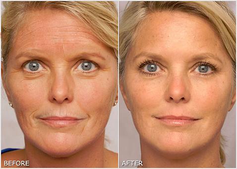 Renuvue-Anti-Aging-Serum.jpg