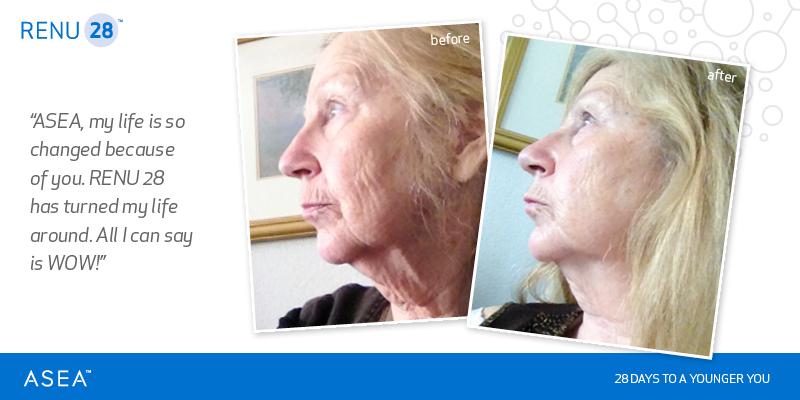 renu28-before-after-testimonial-10.jpg