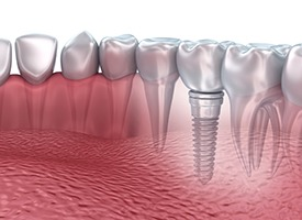implant-restoration.jpg
