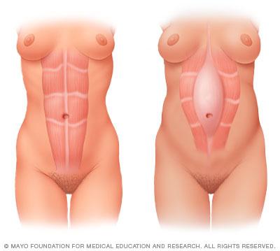 What a Diastasis Recti looks like