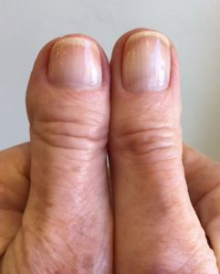 My Mother's Thumb(s) -