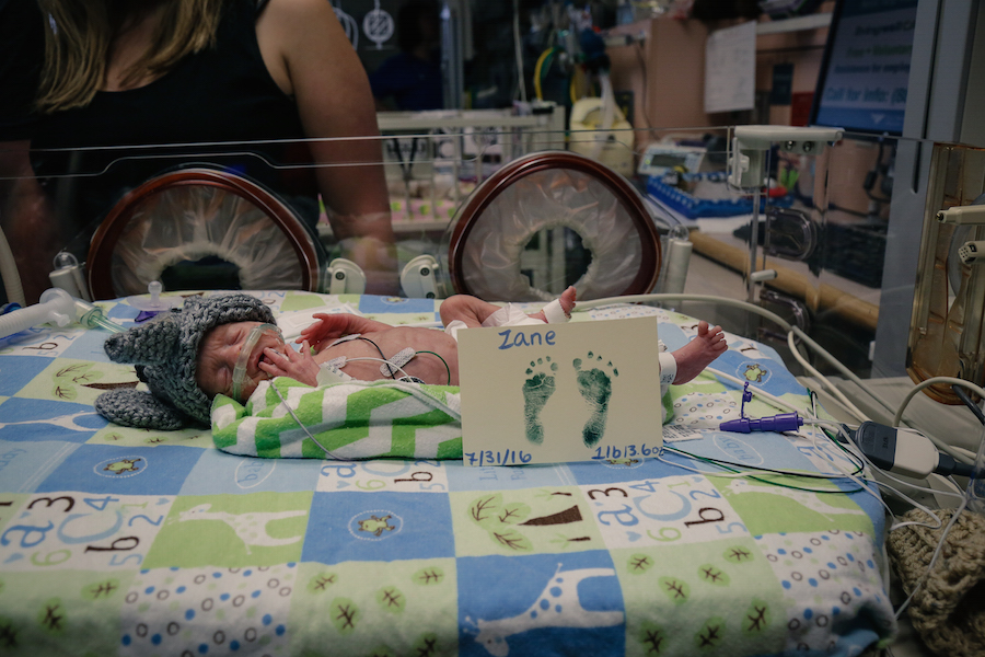 Zane weight just 1 pound 12 ounces when he was born. JoAnn Marrero Photo.