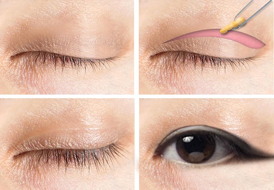 엘에이 성형외과 눈수술-WEB.jpg