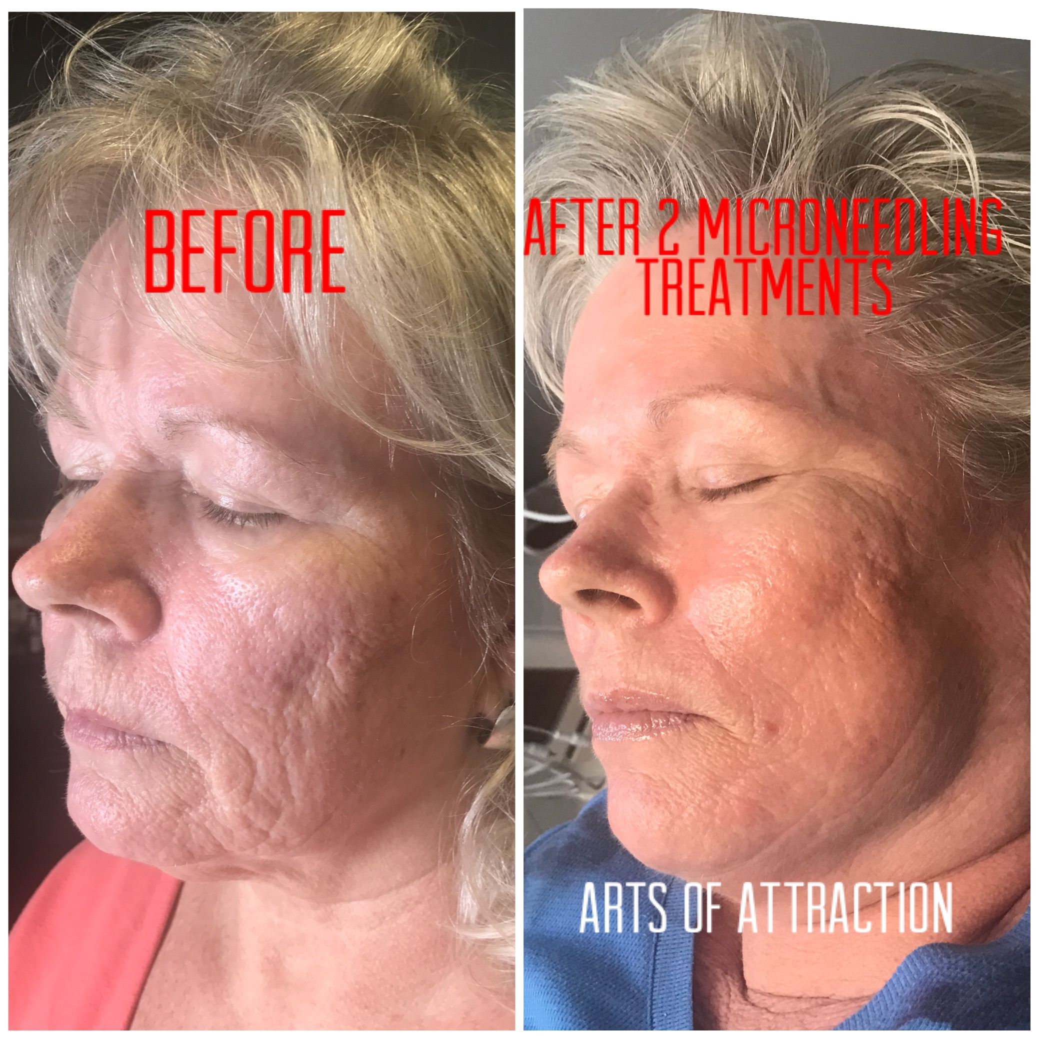 What are the benefits of microneedling?  Microneedling helps reduce the signs of aging, improve the appearance of acne scars and rejuvenate aging skin. Along with hyperpigmentation, Dark sun spots, wrinkles, uneven skin tone, stretch marks and much more. Microneedling is effective for all skin types.  Is appropriate for all skin types.The Microneedling device creates hundreds of tiny micro-channels in the skin with minimal damage to the epidermis. It disrupts the junctions between the skin cells, temporarily disrupting the skin's barrier function. This brief, mechanical disruption does not cause the melanocytes (pigment-producing cells) in the epidermis to react by increasing pigment production and darkening the skin in a process called hyperpigmentation. Therefore, it can be used on all skin types, including darker skin that is more susceptible to hyperpigmentation.  Can be used on many body parts.The needle depth adjusts from .25 mm up to 2.5 mm, allowing the provider to tailor the treatments to the patient's particular skin thickness as well as his or her needs. It has variable needle depth makes it more versatile than traditional rollers, and it can be used efficiently on many parts of the body.  7 Surprising Microneedling benefits for your skin!   #1. Improves the quality and texture of your skin (immediately)    #2. Reduces pock marks and scarring    #3. Reduces black heads    #4. Treats acne and cystic acne    #5. Exfoliates the skin     #6. Makes you look younger by reducing fine lines and wrinkles    #7. Reduces hyperpigmentation and evens skin the skin tone   Does microneedling hurt?  A topical anesthetic is typically applied prior to a the procedure. This allows for a comfortable experience for most people. Generally, patients report feeling just the slight vibration during the procedure. Microneedling used to treat acne scars, the patients' average pain rating was only 1.08 out of 10. For most people, that's probably less painful than having your eyebrow