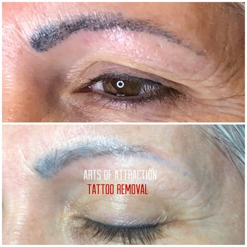 Tattoo Removal — Arts of Attraction