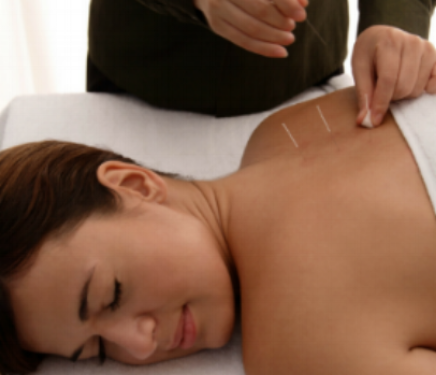 Acupuncture for acute or chronic pain - treats traumatic injuries, sports or overuse types of aches and pains, chronic, auto-immune or aging related pains.