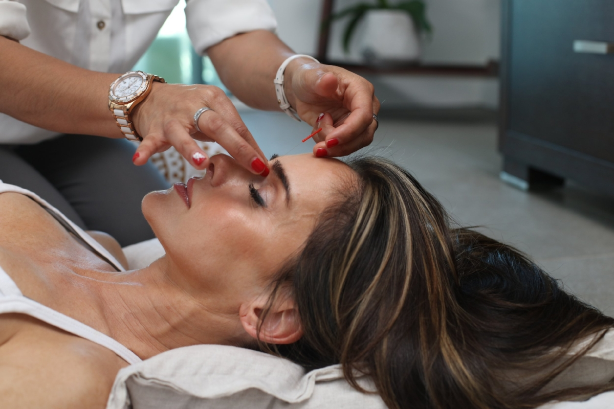 acupuncture improves blood flow and lowers stress -