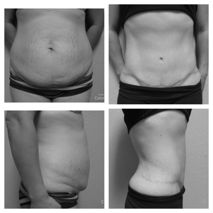 "Age: 33  Height: 4'11""  Weight: 125  Procedure: Abdominoplasty"