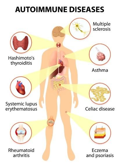 autoimmune diseases.jpg