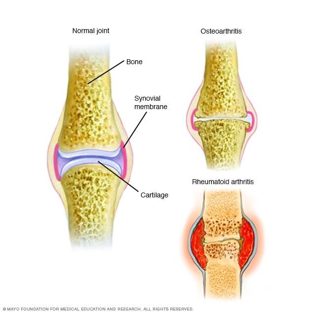 Arthritis 2.jpg