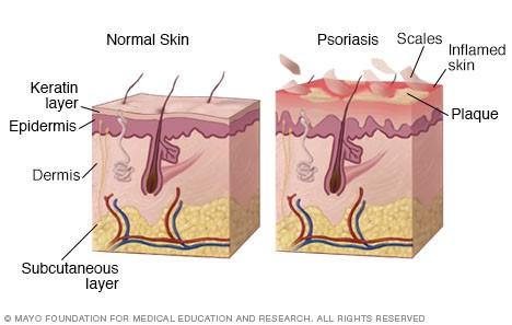 psoriasis 1.jpg