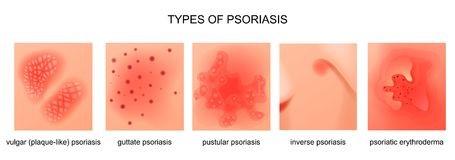 psoriasis 3.jpg