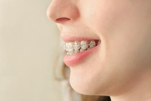 braces-maple-grove.jpg
