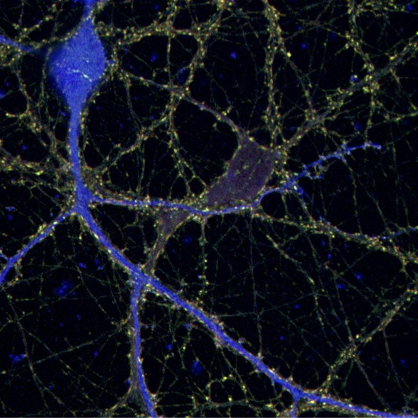 Neuronal culture.jpg