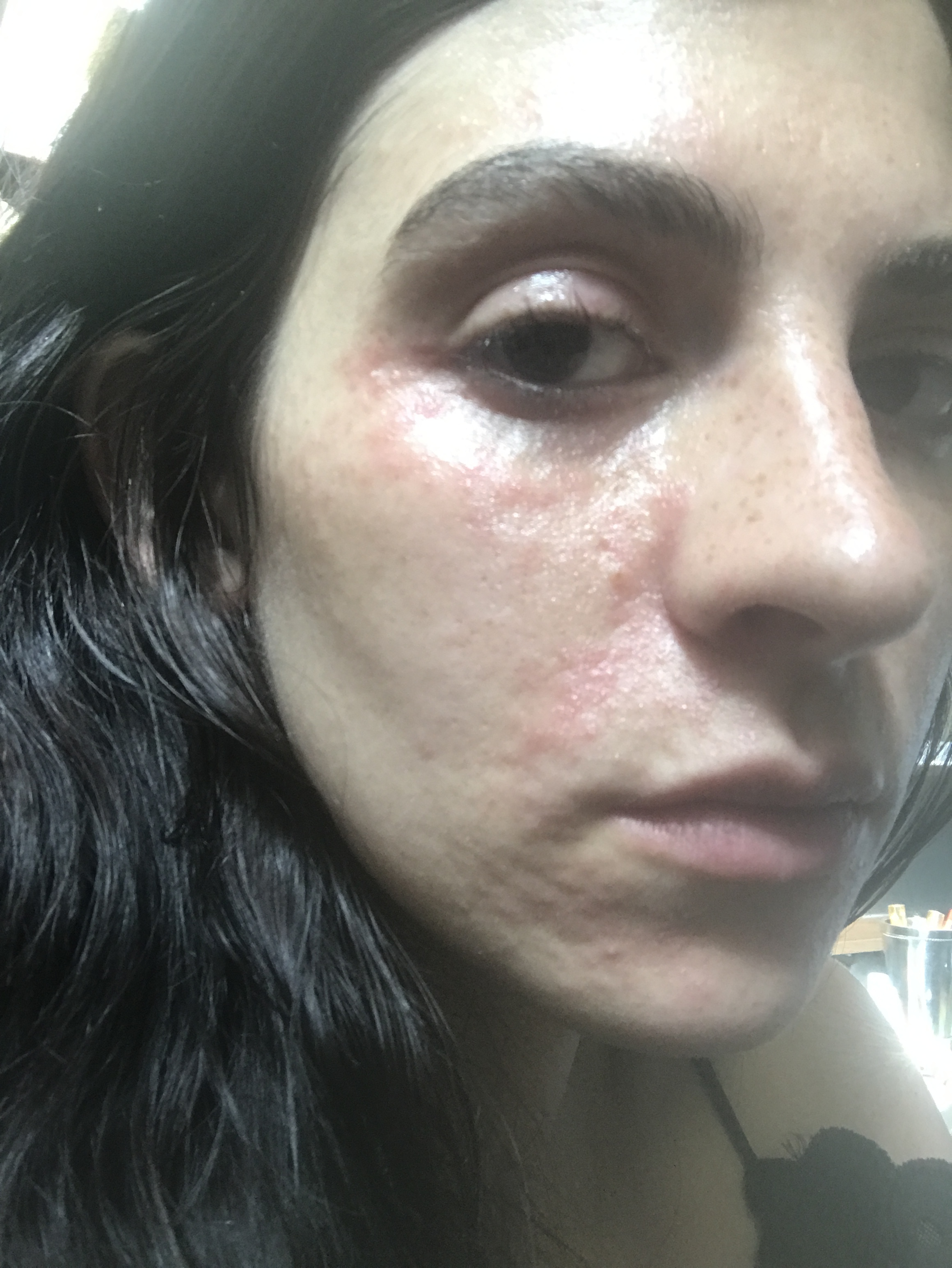 periorbital-dermatitis.JPG