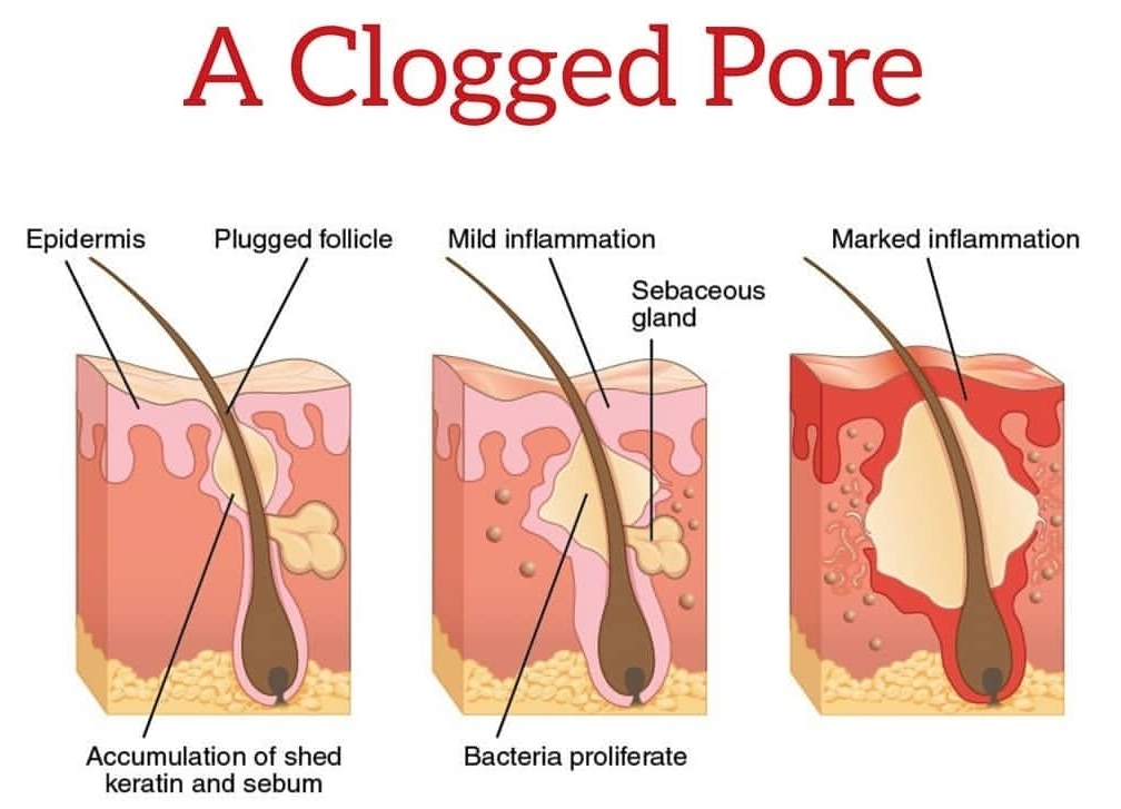 whats-in-a-clogged-pore.jpg