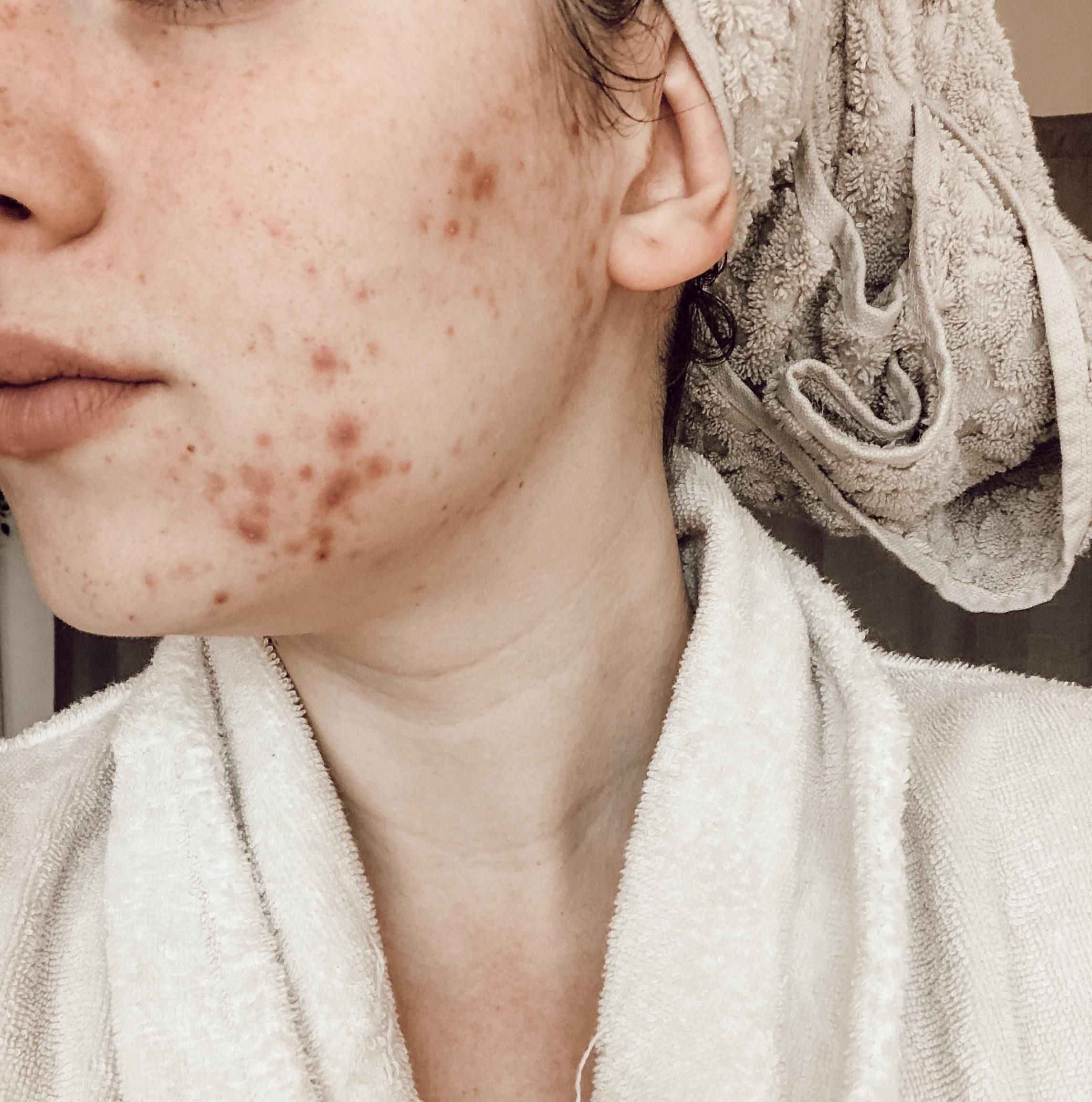 skin-breaking-out.jpg