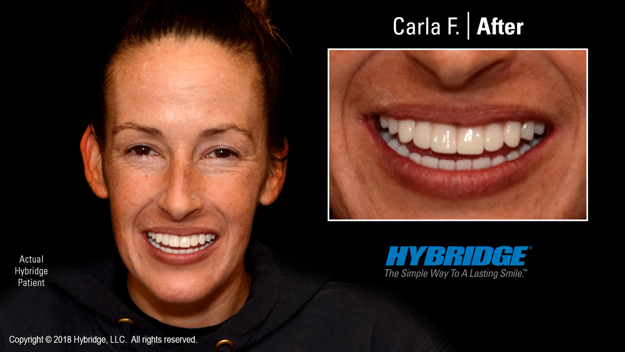 hybridge_carla_f_after.jpg