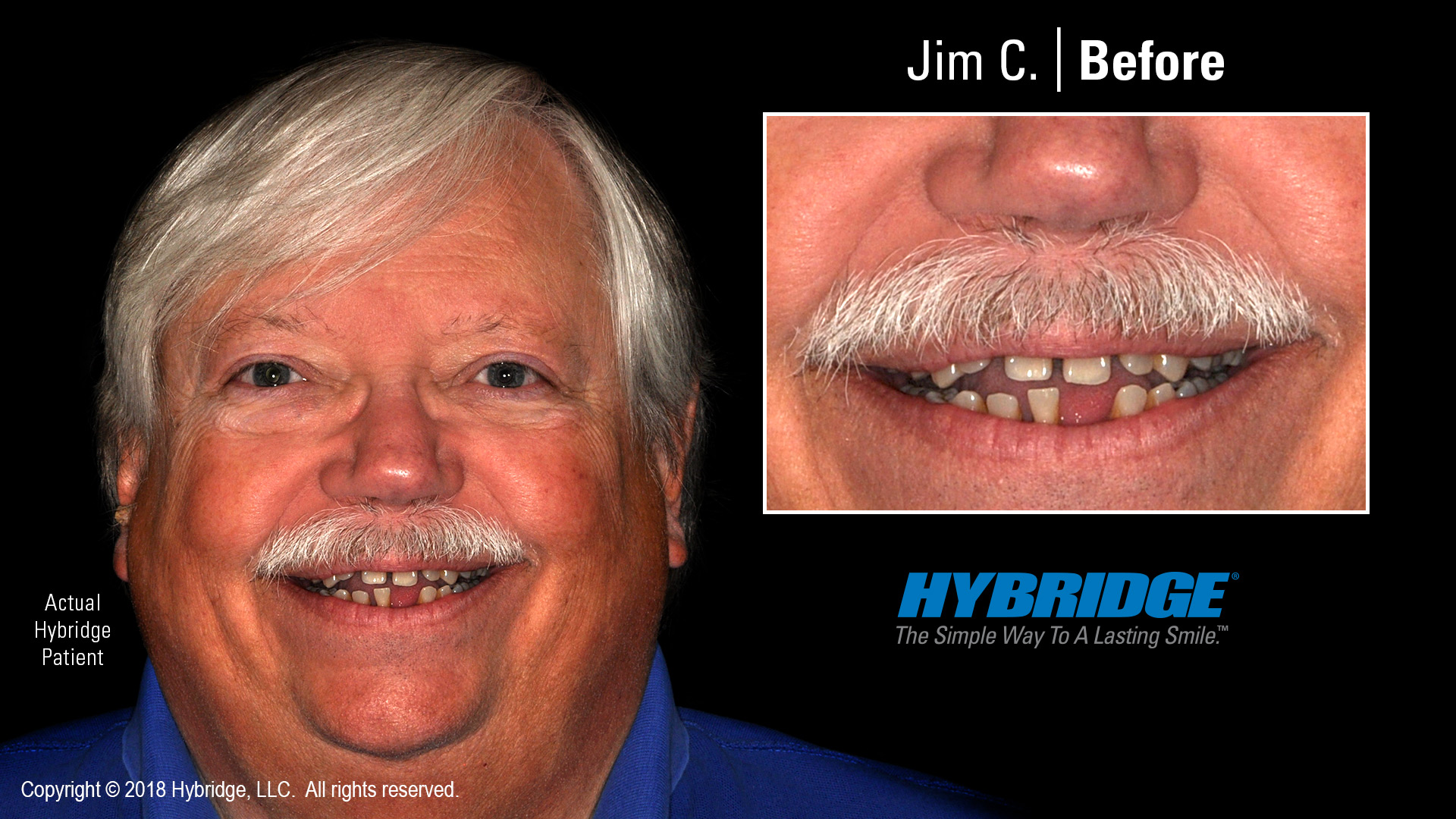 hybridge_jim_c_before.jpg