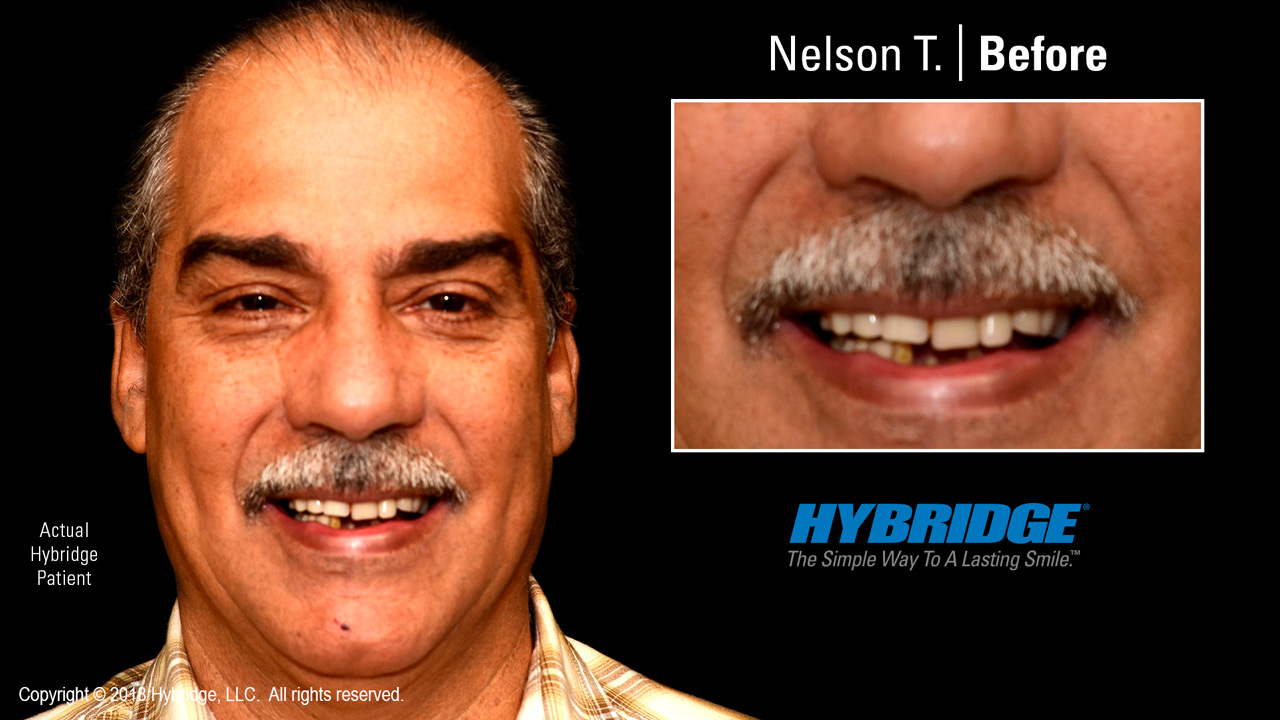 hybridge_nelson_t_before.jpg