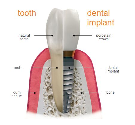 Implant_Tooth_Root_Bone.png