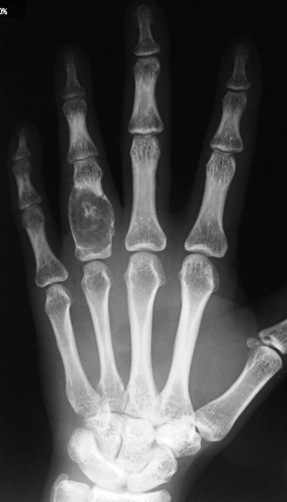 Enchondroma (Benign Tumour) Ring Finger