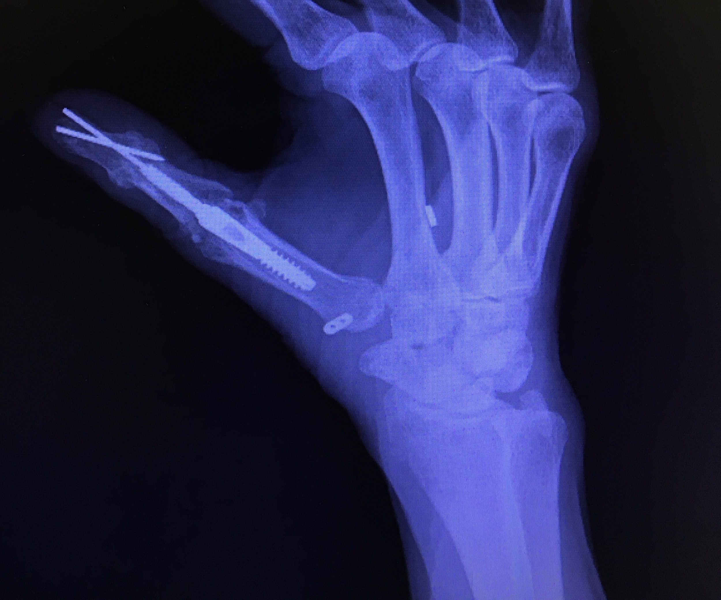 Postop - Arthritis Hand