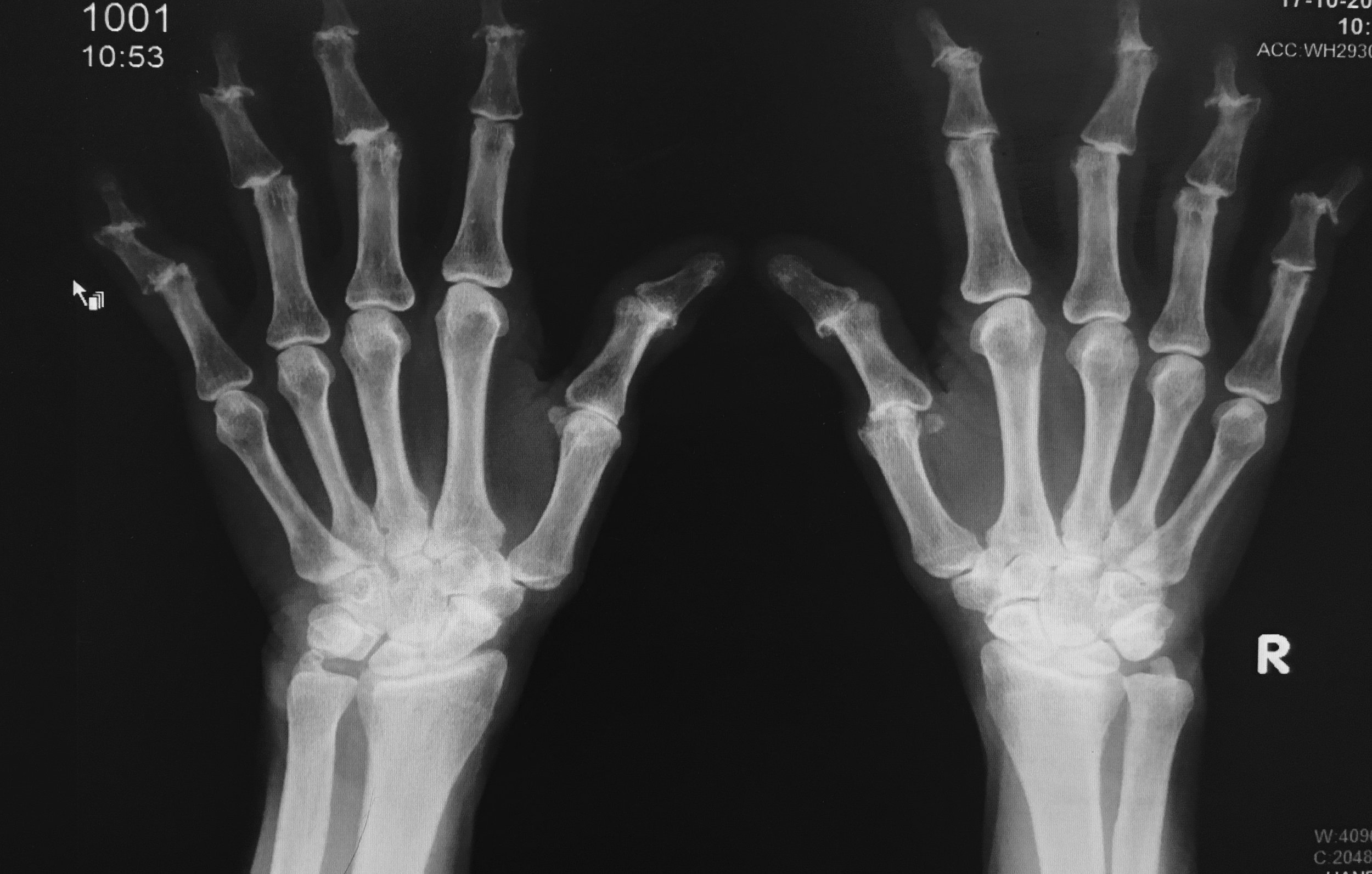 Xray - Arthritis Hand