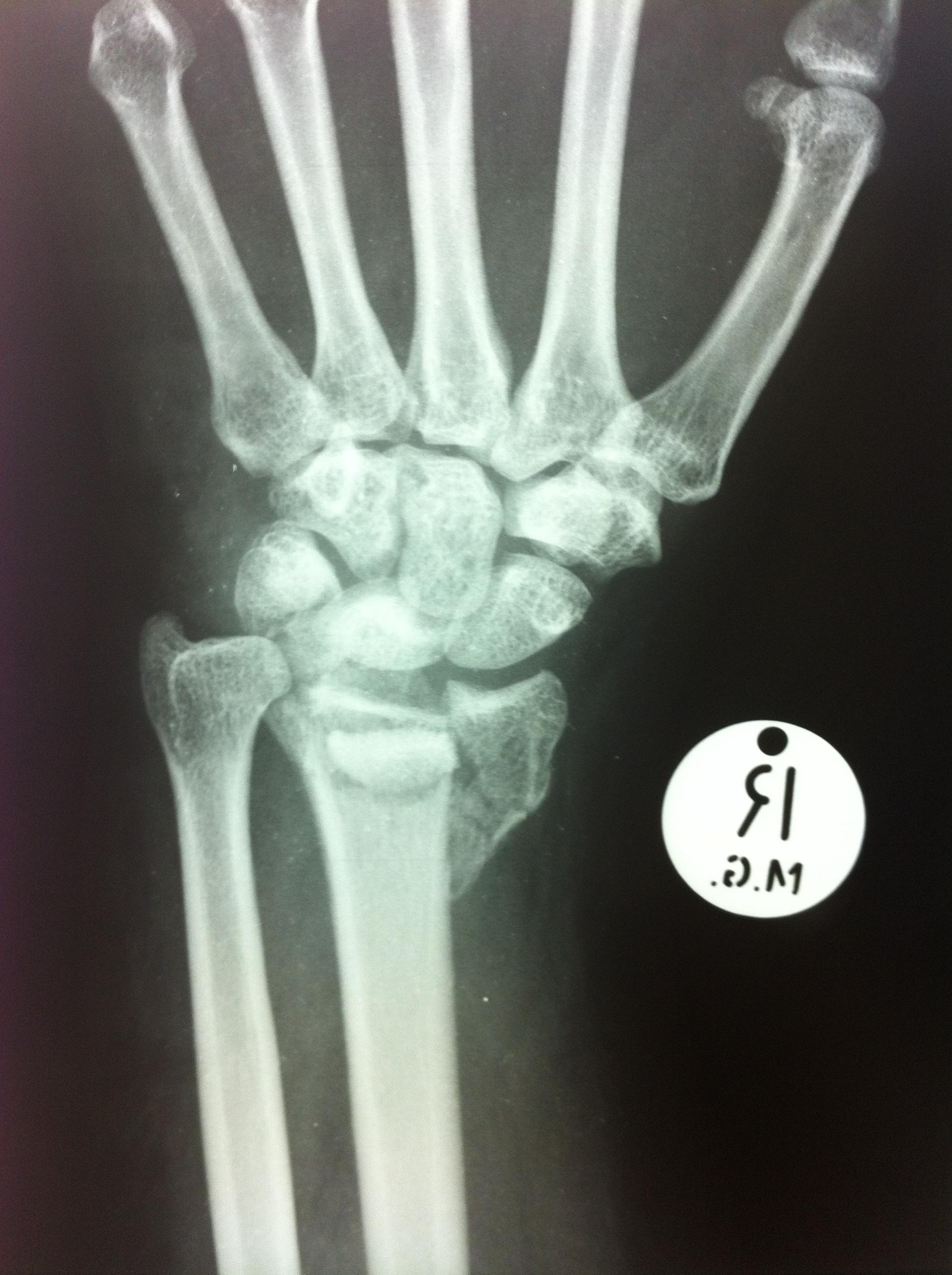 Xray - Pre-op radius fracture