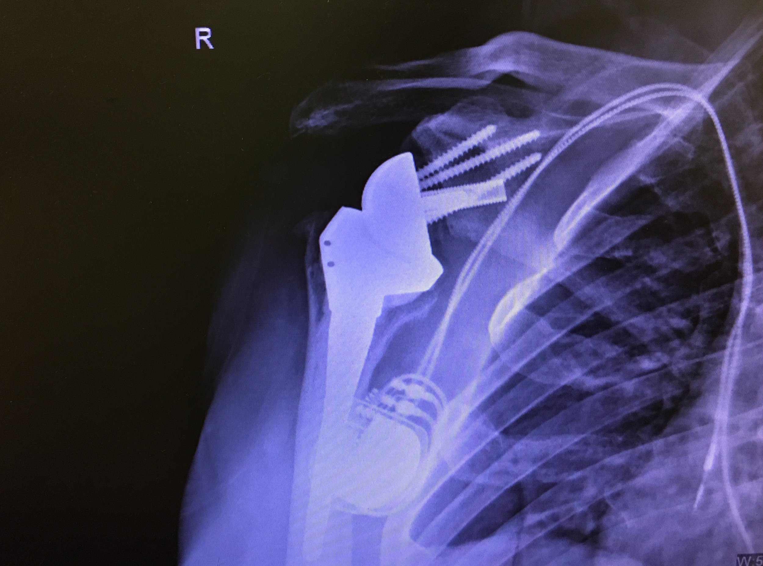 Post operative X-ray - shoulder replacement