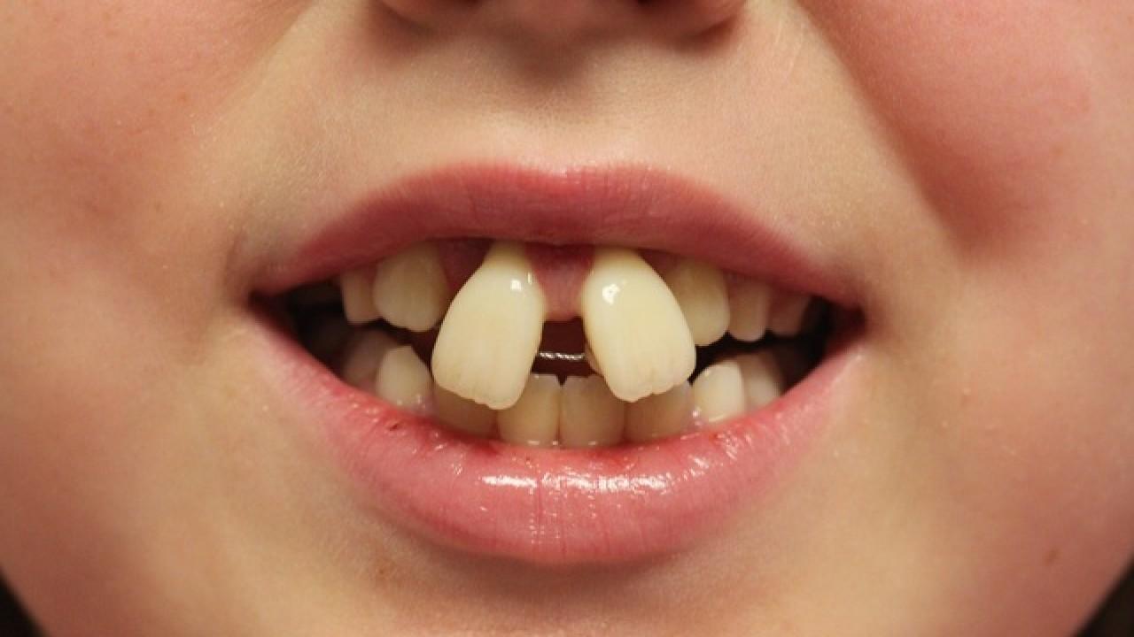 DIY braces 2.jpg
