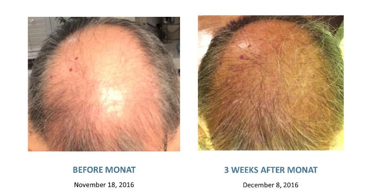Luvyourhair_monat-before_After3.jpg
