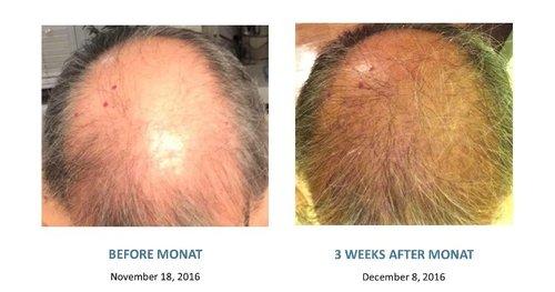 ebe164deb5b hair growth, male hair loss, male baldness, men hair products ...