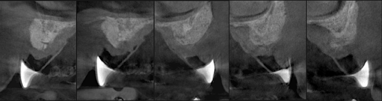 smart-procedure-dentistry.png
