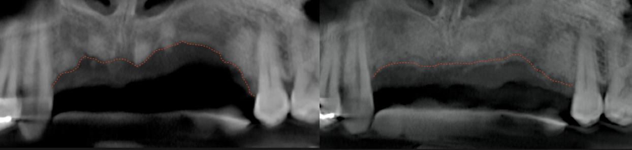 bone-graft-smart