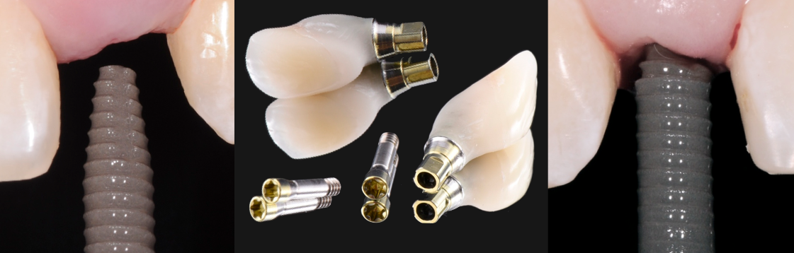 research-patients-bone-grafting