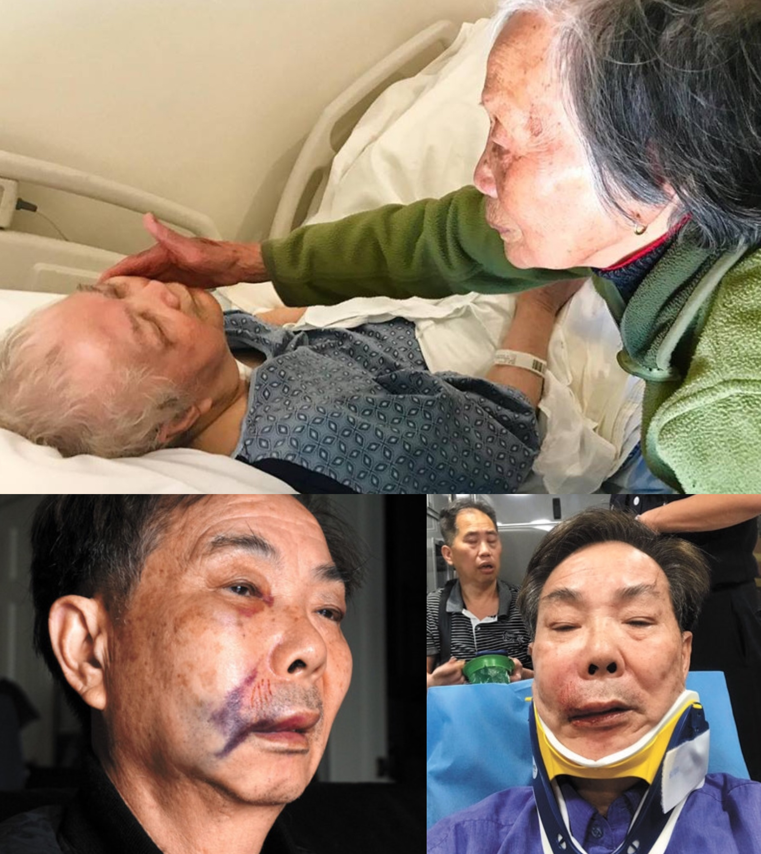 Recent victims of attacks on seniors in the Chinese community. Photo credits: Sasanna Yee and Sing Tao Daily.