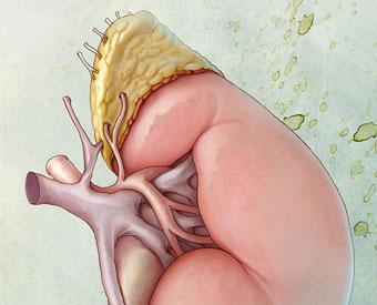 appendectomy-01.jpg