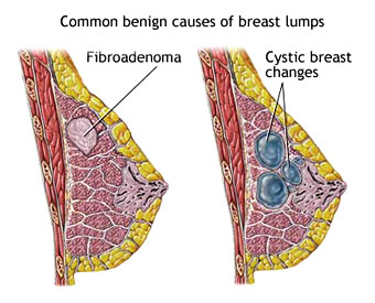 fig 3. Changes in Breast