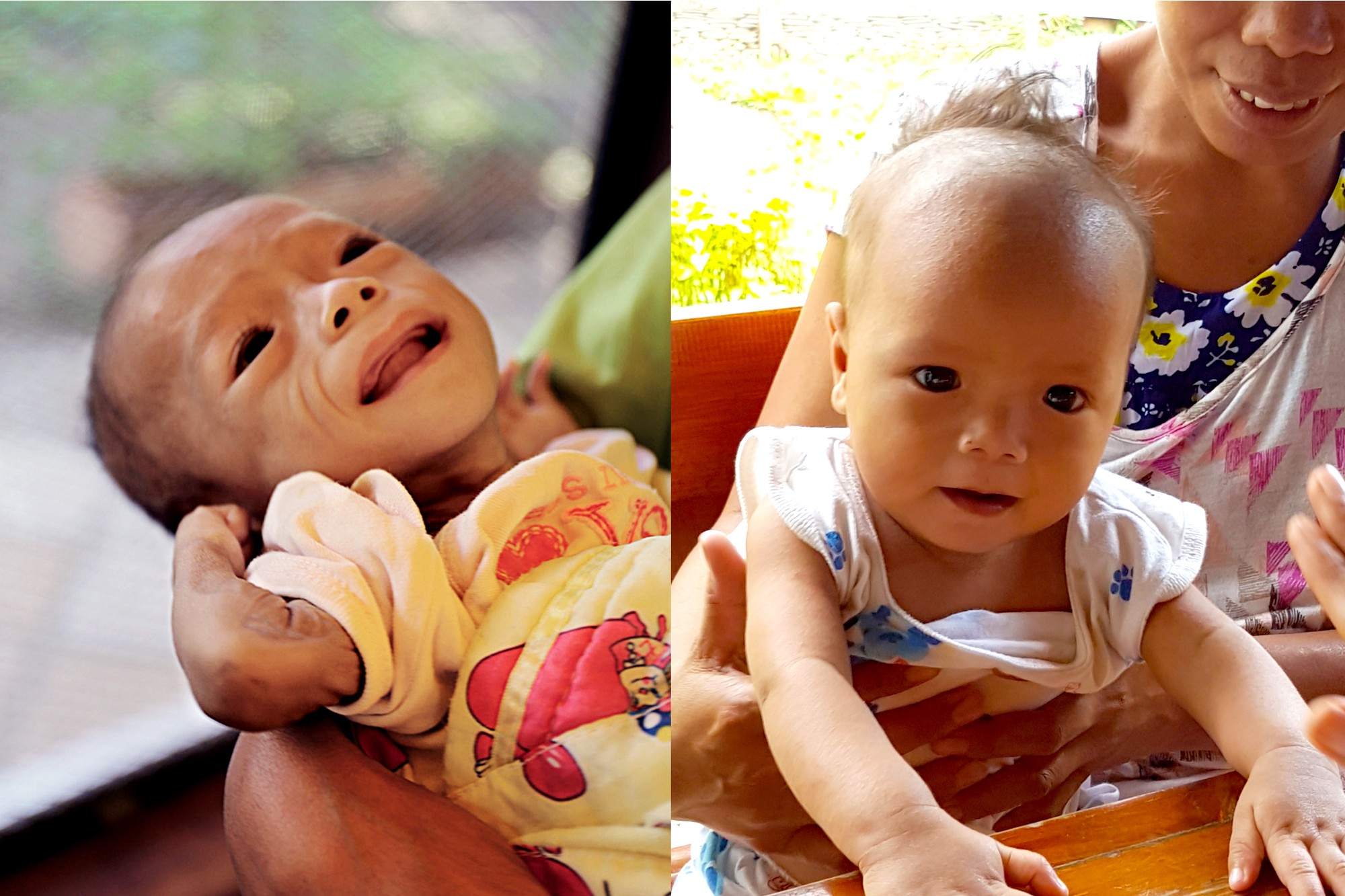 Joemar Bacaltos' weight increased from 3.3 kg in August 2016 (left) to 6 kg in December 2016 (right) after beginning treatment for severe acute malnutrition.    Photo source: Lotta Sylwander, UNICEF Philippines Country Representative   ©UNICEF Philippines/2016