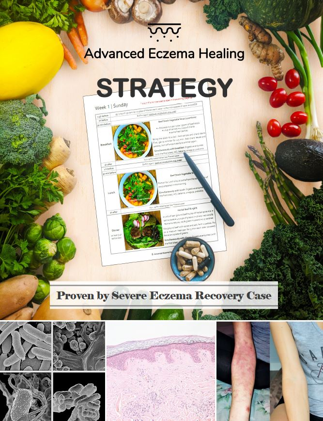Eczema Diet: a Tool to Manage or Cure — Advanced Eczema Healing