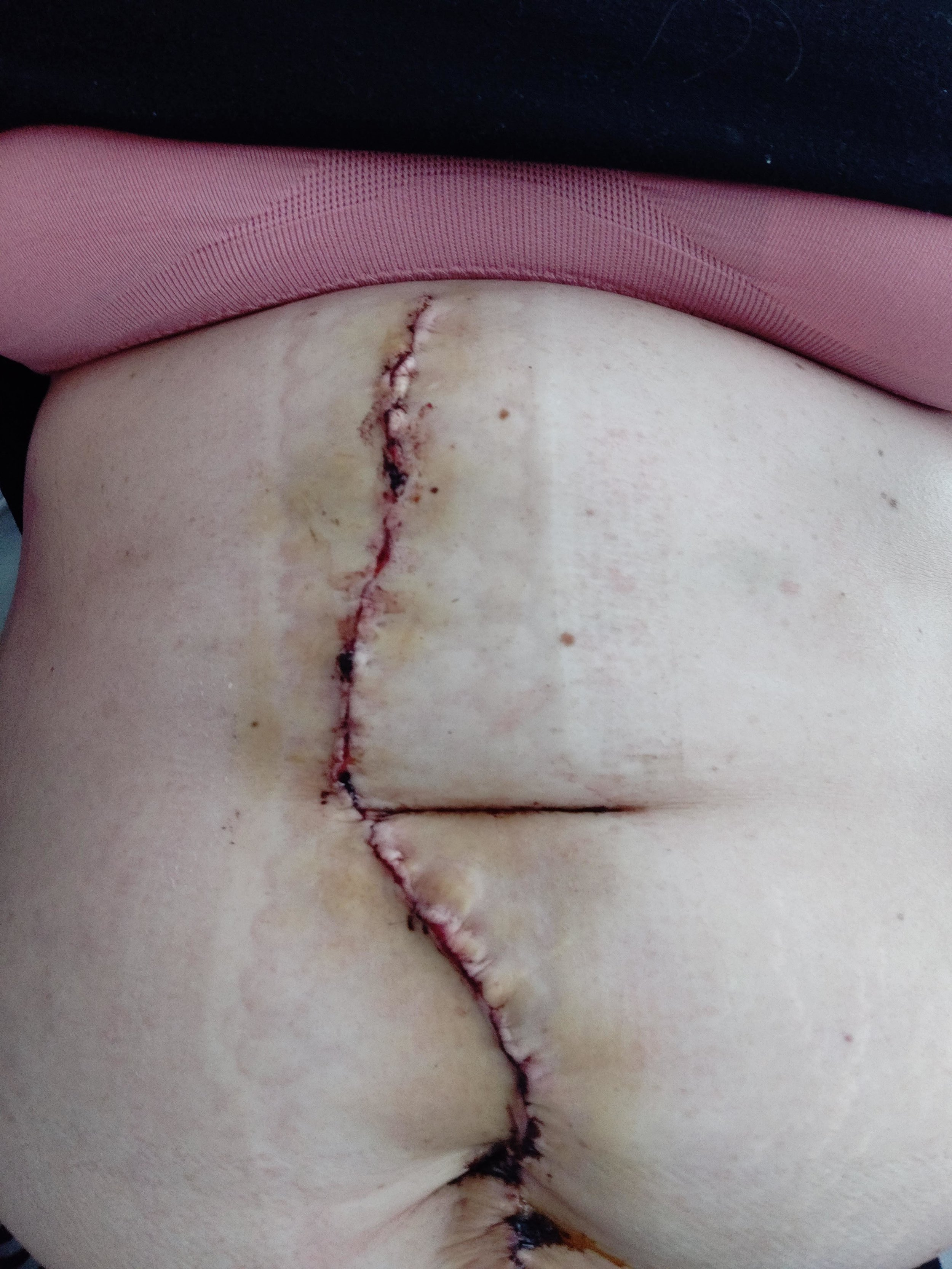 Post Op Aortofemoral Bypass Graft