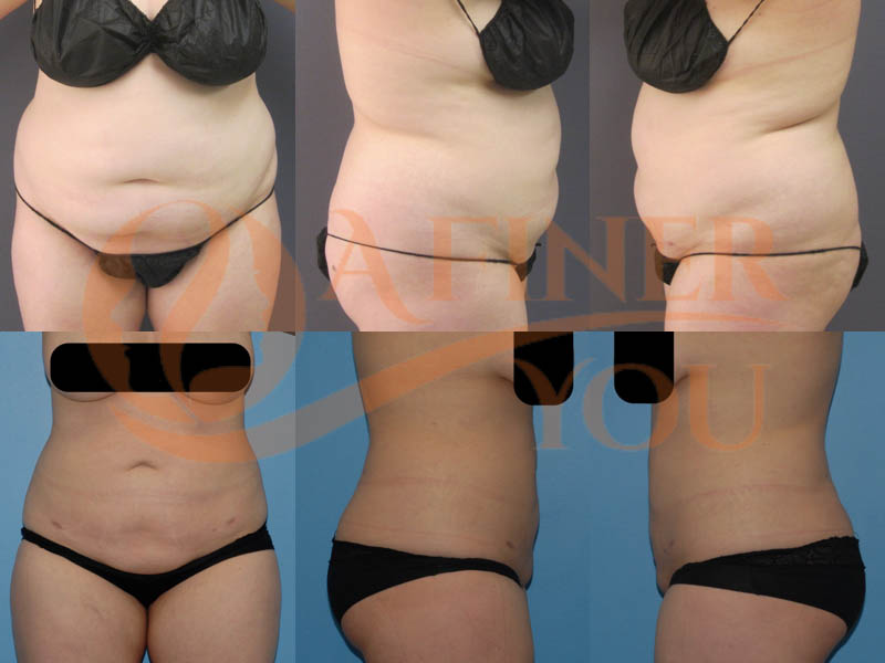Liposuction abdomen, waist, mons, back bra roll, side chest, lower back 2 sessions with tumescent anesthesia 4 and 6 month results