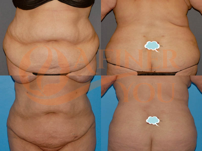 Liposuction Abdomen, Waist, Front and back bra roll, and sacral area 2 sessions with nearly 5 liters of fat taken out each time